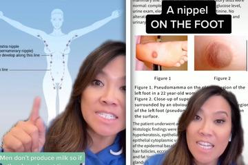 Nippel am Fuß? Dr. Pimple Popper verrät, wo Extra-Brustwarzen wachsen können