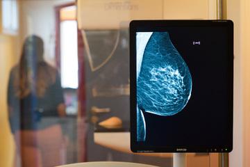 Nicht mal 50 Prozent! Immer weniger Frauen gehen zur Brustkrebs-Vorsorge