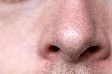 Gute Nachricht für Corona-Patienten: Geruchssinn kann wohl voll zurückkehren