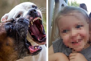 Mädchen wird von Hunden der Nachbarn getötet: Jetzt müssen auch die Tiere sterben