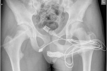 Junge misst seinen Penis mit USB-Kabel: Krankenhaus!