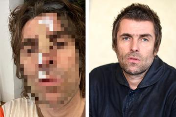 Oasis-Legende Liam Gallagher aus Helikopter gestürzt: Krasses Foto zeigt ihn danach
