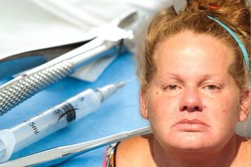 Horror-Behandlung! Falsche Zahnärztin zieht Patient 13 Zähne