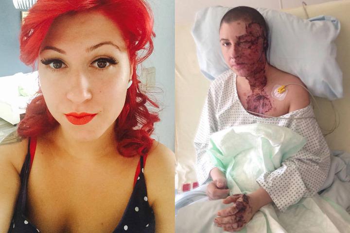 Vorher und nachher: Seit dem Angriff musste Vanessa bereits 20 Mal operiert werden.
