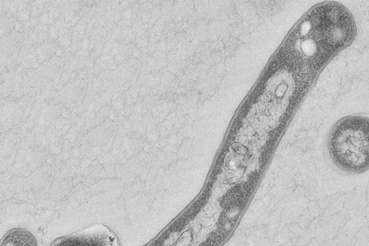 Der Tuberkulose-Erreger kann bei einem geschwächten Immunsystem durchaus gefährlich werden. In der Regel kann er per Antibiotika behandelt werden.