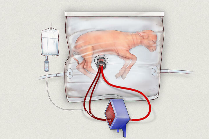Das Foto zeigt, wie die künstliche Gebärmutter das Lamm umschließt.