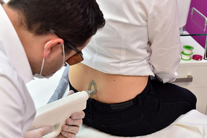 Hier lasert er gerade Kundin Agnieszka (35) ein Tattoo weg, ein langwieriger Prozess.