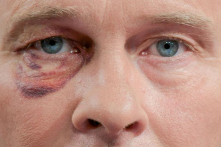 Sein rechtes Auge ist noch sichtlich gezeichnet. Trotzdem sagte er, dass er es noch einmal genau so tun und den Wildpinkler zur Rede stellen würde.