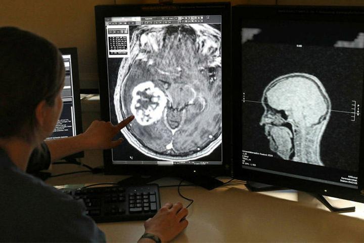 Im MRT-Bild wird ein Tumor sichtbar. Fortan sollen Onkologen und Krankenhäuser über das Tumornetzwerk ihre Befunde an ein Kompetenzzentrum senden können und von dort Therapievorschläge erhalten.