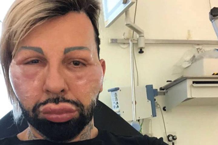 Harald Glööckler schockt mit Gruselfotos aus dem Krankenhaus