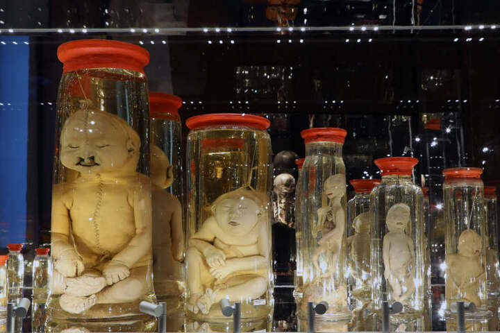 Die Sammlung konservierter menschlicher Föten stammt aus dem Nachlass der Leipziger Apothekerfamilie Link.