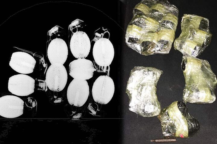 Das Röntgenbild (l) und das normale Foto zeigen, wie die Handgranaten aussahen.