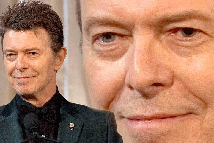 David Bowie (†69) hatte ebenfalls verschiedenfarbige Augen.