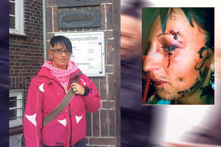 Blutige Wunden im Gesicht und ein dickes Veilchen am Auge: Opfer Nicole Leuchtmann (30) soll von Fahri A. krankenhausreif geschlagen worden sein.