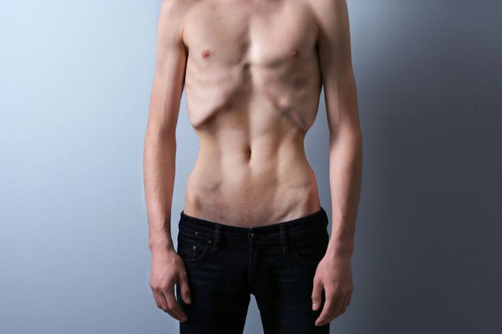 Eine weitere Gewichtsreduzierung bei den Athleten wäre fatal. (Symbolbild)