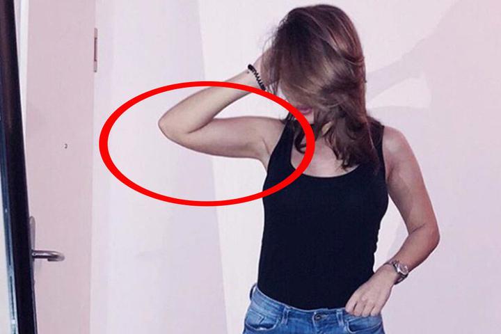 Kim Gloss hat an den Oberarmen eine Fettabsaugung machen lassen. So sahen sie noch vor der OP aus.