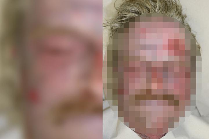 Der leblose Mann wurde in einer Spülrinne entdeckt.