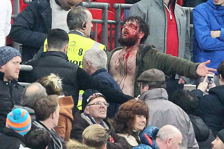 Ein Fan wird blutig geschlagen, feuert seine Mannschaft danach aber weiter an, als wäre nichts gewesen.