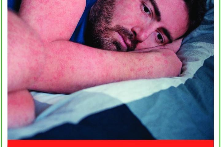 Roter Hautausschlag ist ein Symptom der Masern.