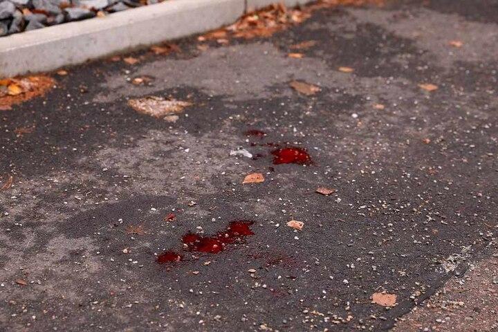 Blutflecken zeugen von dem brutalen Vorfall.