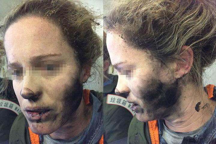 Auf dem Heimflug aus China sind einer Australierin die Kopfhörer explodiert und in Flammen aufgegangen.