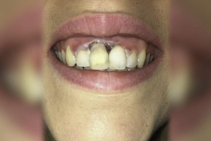 Das Ausmaß der Verletzungen am Zahnfleisch lässt einem einen Schauer über den Rücken laufen.