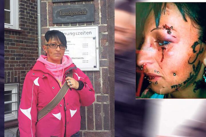 Opfer Nicole Leuchtmann (30) hatte lange mit den Folgen zu kämpfen.