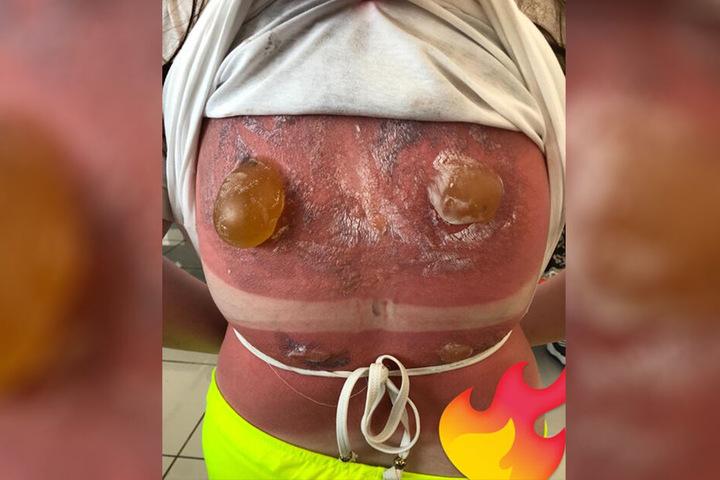 Horror-Sonnenbrand! Mädchen (16) kann nach Schnorchel-Trip