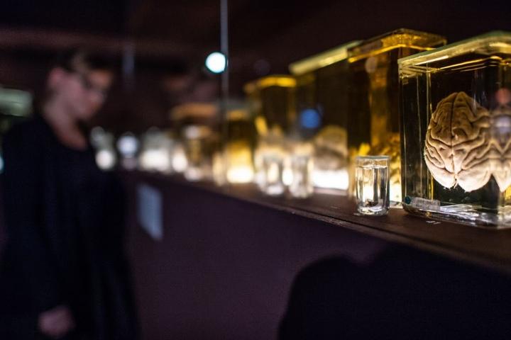 Eine Ausstellung in Münster drehte sich rund um das Gehirn.