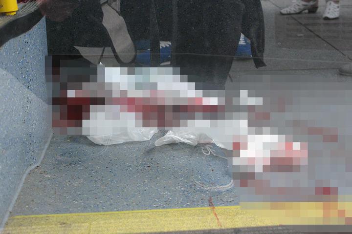 Der Schwerverletzte musste in ein Krankenhaus gebracht werden.