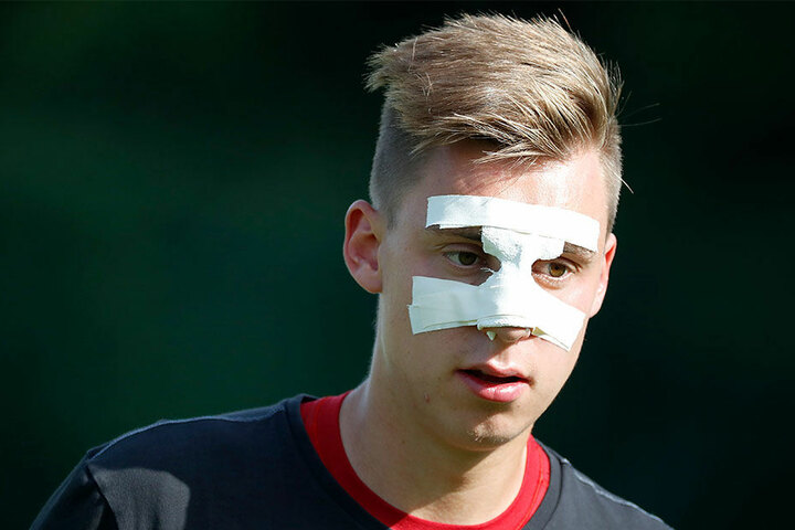 CFC-Torwart Kevin Tittel hat trotz bandagierten Nase den vollen Durchblick.