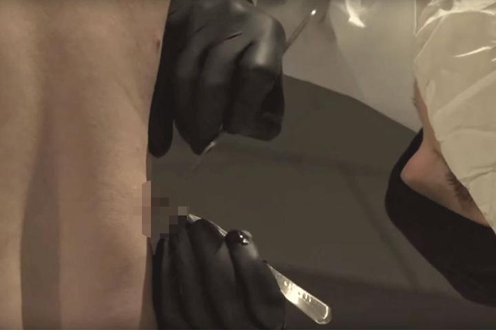 In Nahaufnahme wird gezigt, wie das Fleisch herausgeschnitten wird.