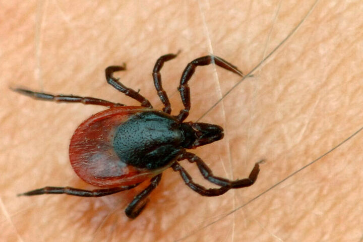 Auch zecken können die Krankheit übertragen (Symbolfoto).