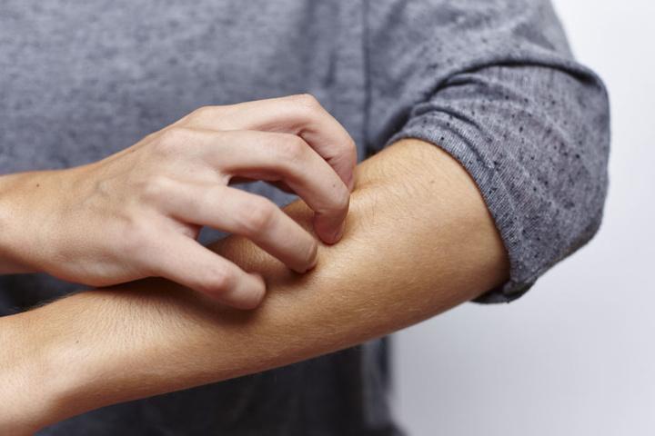 Schuppenflechte geht oftmals mit Begleiterkrankungen einher. So kann sie Diabetes, Adipositas oder auch Depressionen hervorrufen.