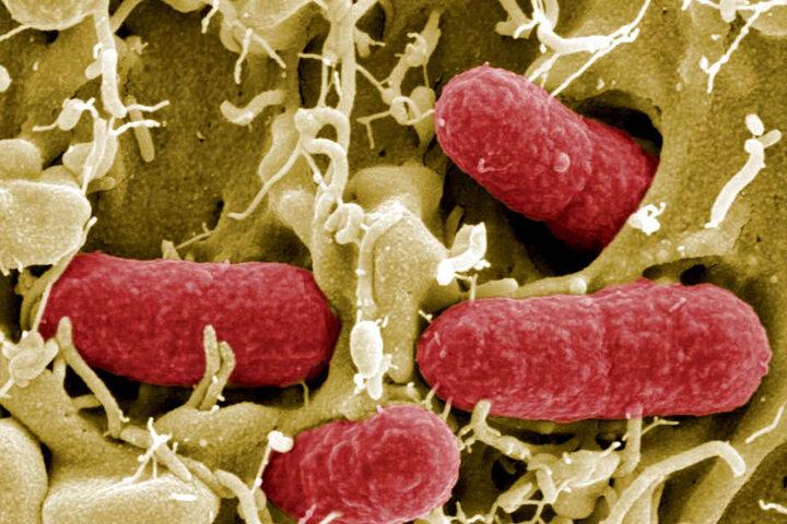 So sehen die Ehec-Bakterien unter dem Elektronenmikroskop aus (Archivbild).