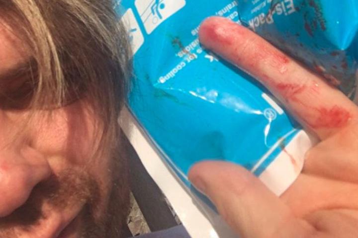 Autsch! Mit einem Cutter verletzte sich der 36-Jährige an seiner Hand.