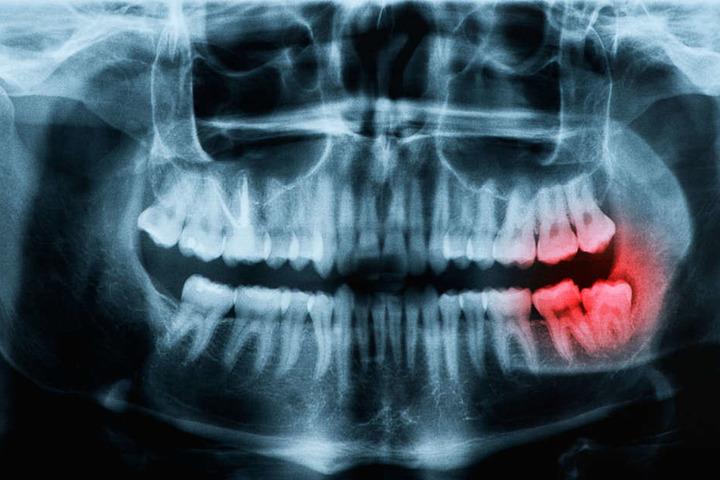 Ab jetzt kannst Du problemlos zum Zahnarzt gehen ohne Dir Sorgen um die Kosten zu machen.