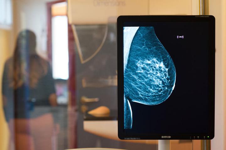 Mammographie-Screenings und ihre Ergebnisse sind nur für die Augen der Patientin und ihres Arztes gedacht. (Symbolbild)