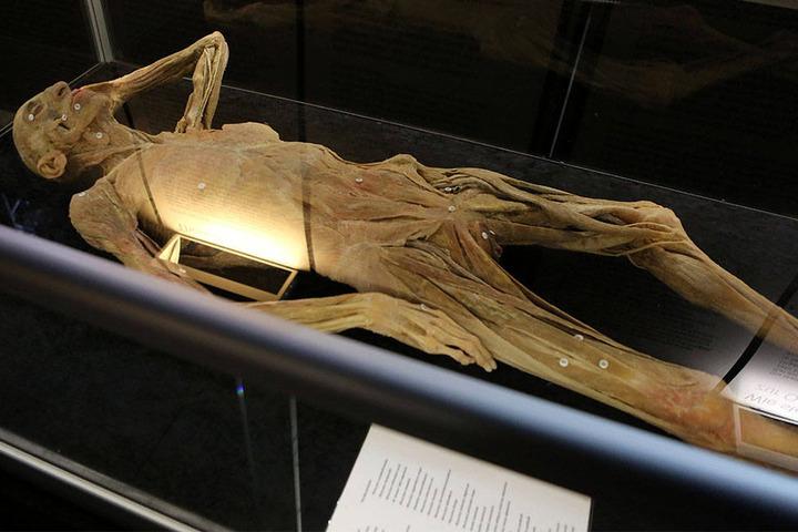 Außergewöhnliche Posen darf man nicht erwarten. Die Anatomische Ausstellung soll lehrreich sein.