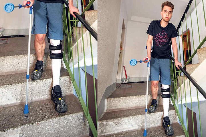 Nur unter Schmerzen kann Luca Nowara (18) die Wohnung im dritten Stock  verlassen. Hier gibt es keinen Fahrstuhl.