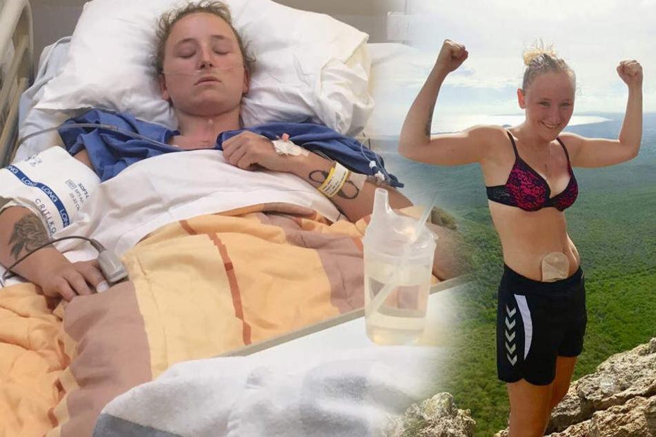 Kelly Beckers leidet unter einer chronischen Darmkrankheit.