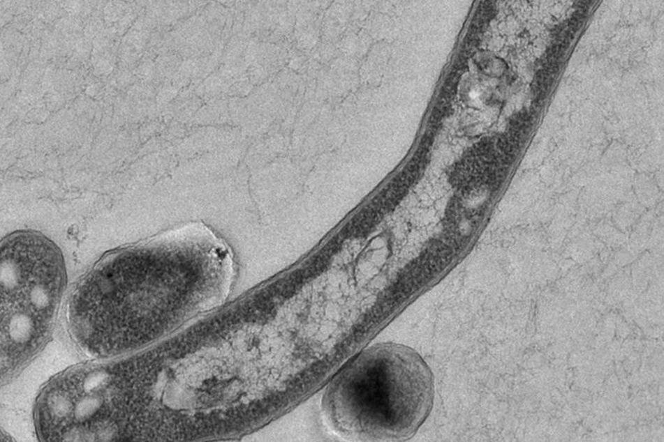 Tuberkolose gilt als eine der tödlichsten Krankheiten der Welt.