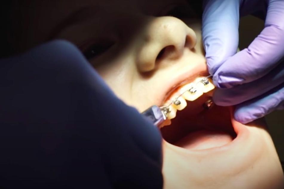 Kinder und Jugendliche mit Zahnspange sollten das hier wissen!