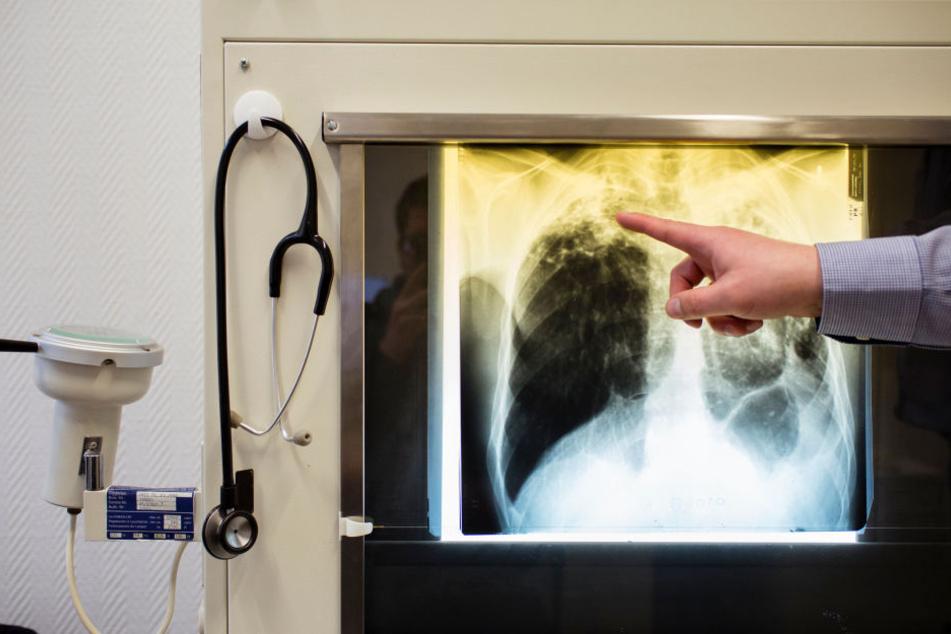 Ein Arzt zeigt an einem Röntgenbild typische Tuberkulose-Erkrankungen an den Lungen. (Symbolbild)