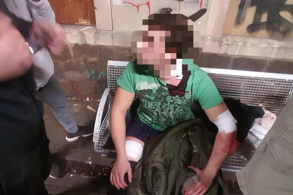 Der 17-Jährige erlitt drei Messerstiche in Oberschenkel und Hals.