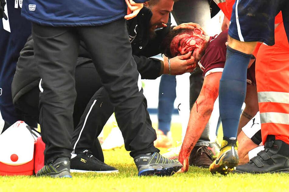 Bei dem Regionalliga-Spiel des SC Wiedenbrück gegen die SG Wattenscheid kam es zu einem Horror-Zusammenprall.