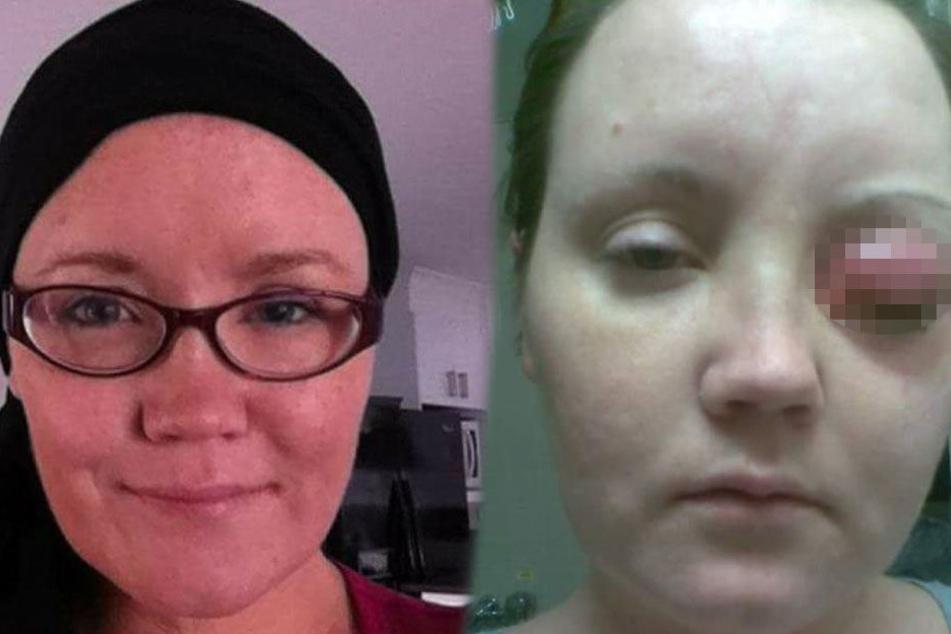 Claire Wilkinson (38) hat mit einem tückischen Parasiten zu kämpfen.