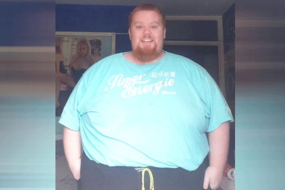Gary Kirkwood (31) vor seiner Transformation.