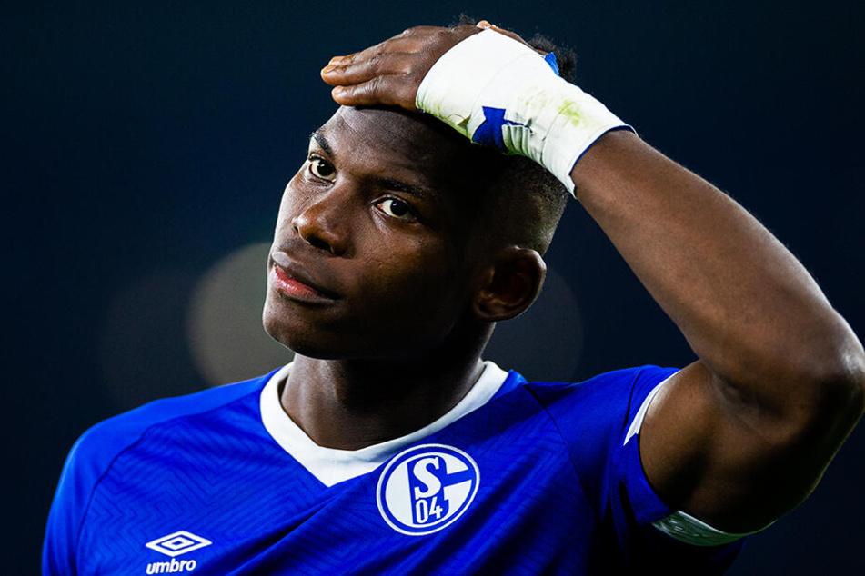 Der verletzungsgeplagte Breel Embolo verließ Schalke und wechselte für zen Millionen Euro Ablöse zu Borussia Mönchengladbach.