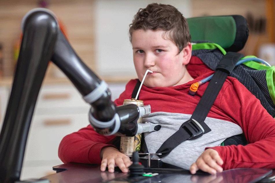 Noah kann mit dem Robo-Arm wieder selbstständig trinken: Etwa eines von  10.000 Neugeborenen kommt mit der Muskelschwäche auf die Welt.